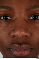 Photos of Dina Moses nose 0001.jpg